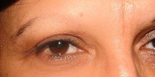 Eyebrow Loss Hair Center Serbia