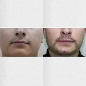 transplatacija-brade-mala